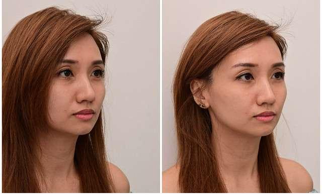 Botox Fillers Singapore Skin Rejuvenation Facial Contouring