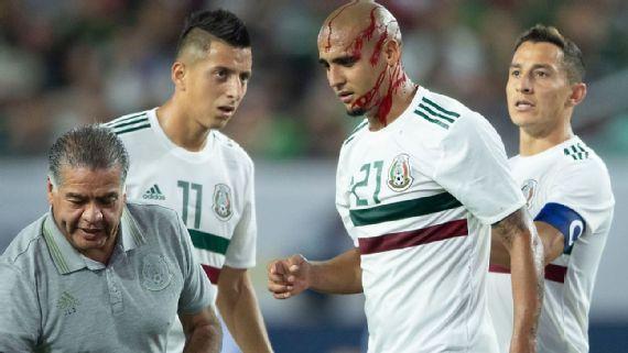 'Chaka' Rodríguez  recibe rodillazo en la cabeza