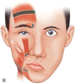 A que se deben las parálisis faciales
